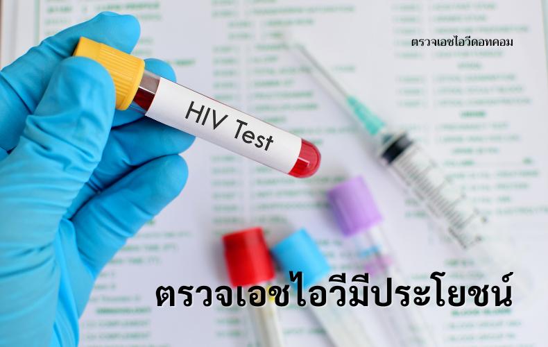 ตรวจเอชไอวี ตรวจเอดส์ โรคเอดส์ โรคติดต่อทางเพศสัมพันธ์ ซิฟิลิส การตรวจเอชไอวี วิธีตรวจเอชไอวี