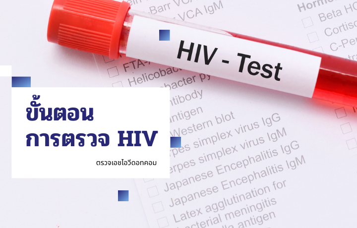 HIV AIDS ไวรัสเอชไอวี เอดส์ ตรวจเลือด ตรวจเอชไอวี ตรวจเอดส์ ขั้นตอนตรวจเอชไอวี ผลตรวจเอชไอวี